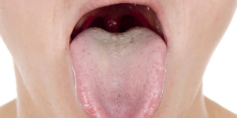 candida intestinale foto